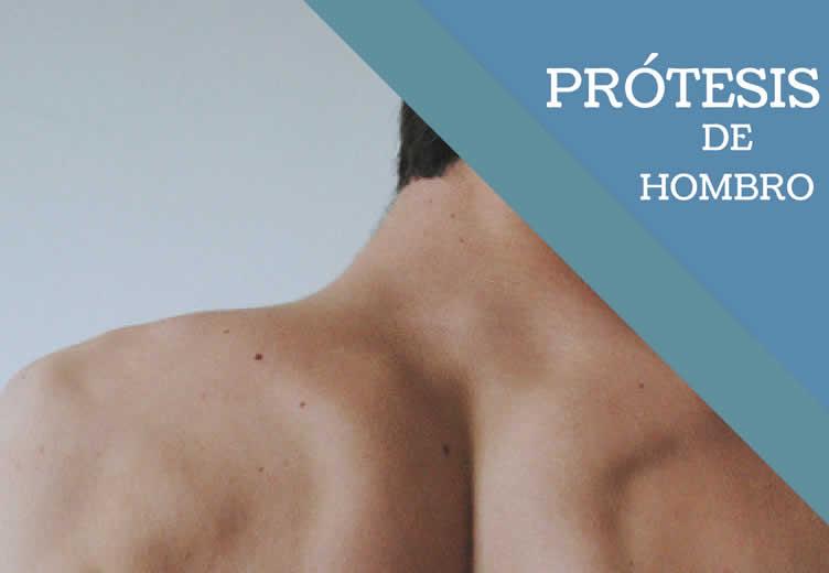 Todo lo que necesitas saber acerca de la prótesis de hombro