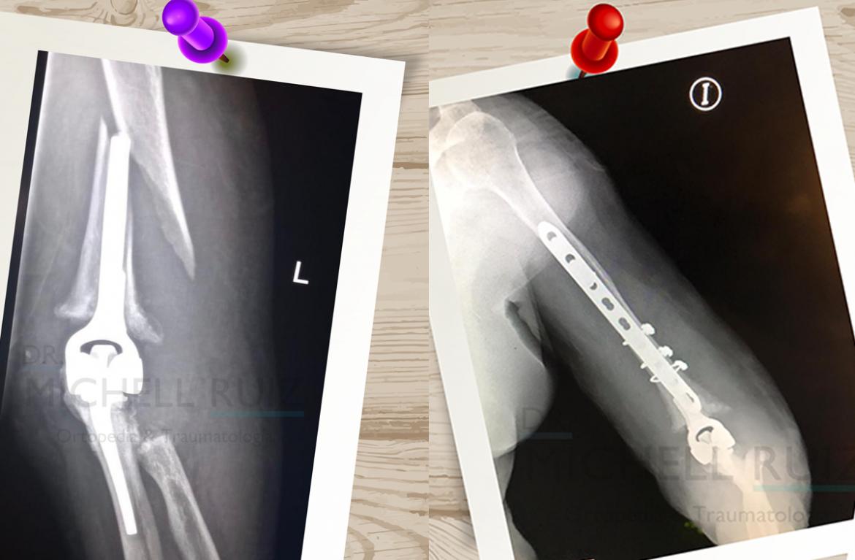 Fractura luego de colocar prótesis de CODO – UN RETO