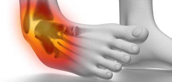 SPRAINED ANKLE: The first 24 to 72 hours